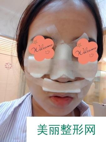 鼻孔整形手术从做完手术到术后两个月的恢复记录