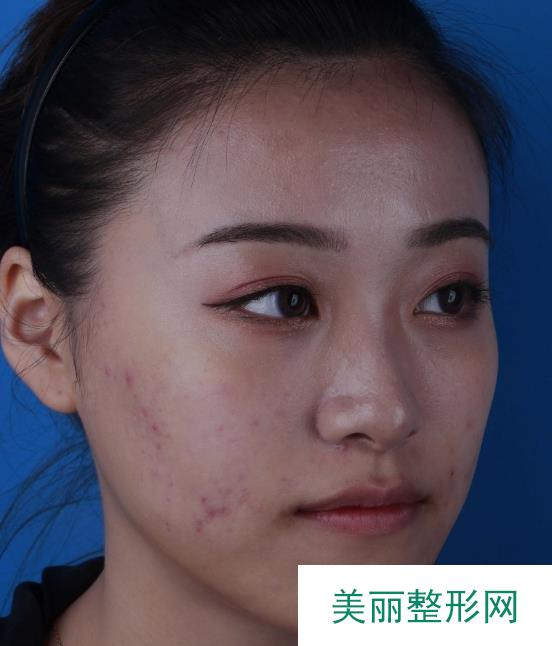 激光治疗痘疤一共做了三次,皮肤光洁拍照不用p