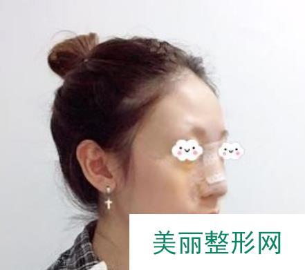 韩式无假体隆鼻术后超自然,两个月后效果展示