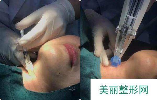 使用了新注射除皱方法后年轻了不少呢!