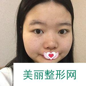 """面部吸脂塑型可以完美改善我的""""婴儿肥"""",显出我的小v脸"""