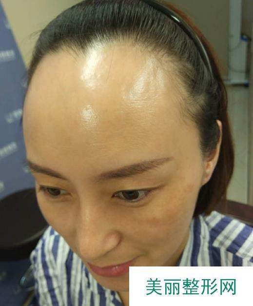 在北京植发后的头发长势不错,赶紧来给各位分享!