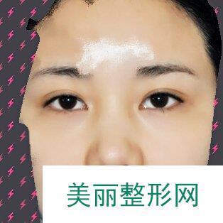 【案例】鼻翼改薄整形手术确实值得推荐,鼻型精致了不少!