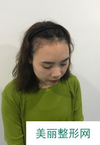 南京植发案例真人分享,两个月见证新生毛发!