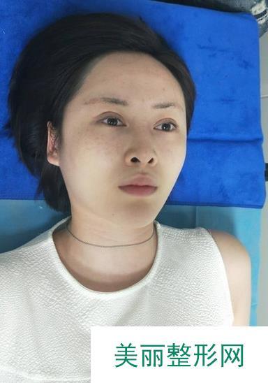 听说鼻孔大不守财,鼻孔缩小手术对比图会惊讶到你