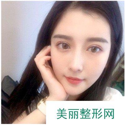 韩式埋线双眼皮的恢复记录,成为韩式美女的第1步