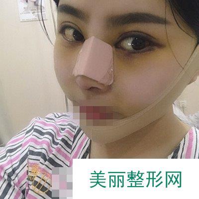 鼻翼太大不够秀气,做了缩鼻翼手术判若两人【有照片】