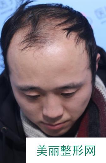 在雍禾植发后,秃顶的我终于重新有了生活的信心