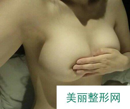 在北京做了隆胸术后,我自己都被惊呆了