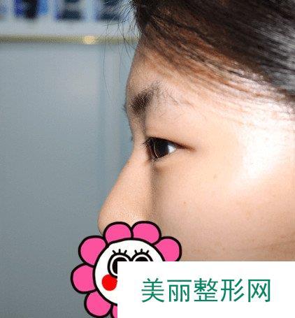 埋线双眼皮手术过程原来这么简单,术后都不用拆拆线了