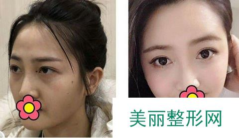 面部填充手术方法,在一个月时间内越来越自然