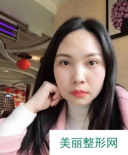 广州南方珠江医院眼科整形做了双眼皮后,感觉年轻了不少