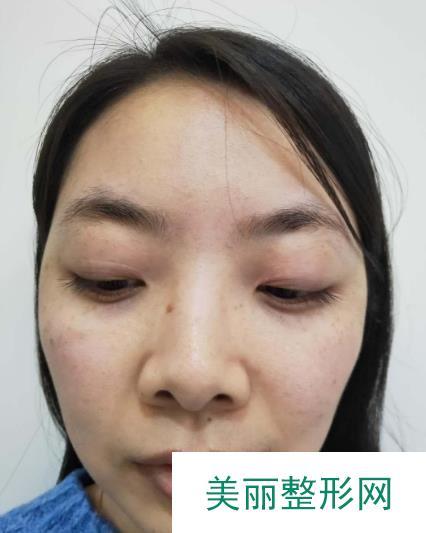 汉中中心医院割双眼皮,体质较差,三个月了还有点不自然