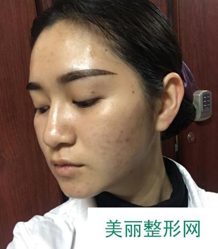 兰大二院光子嫩肤改善面部肌肤斑点和痘印