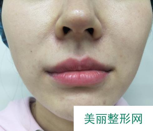 自体脂肪填充鼻唇沟更显年轻,p图师无压力
