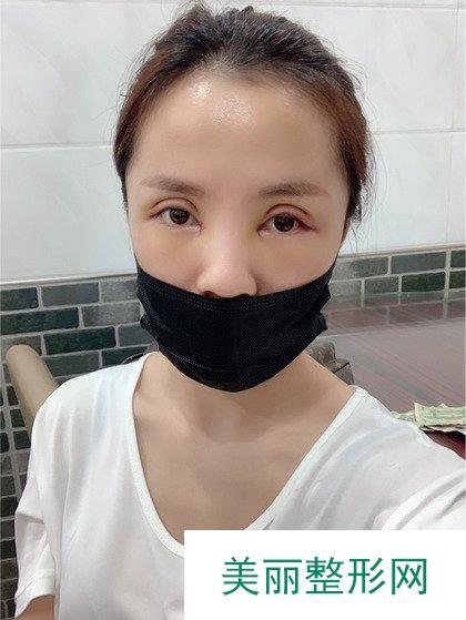 双眼皮不明显,去做了增大双眼皮后是我想要的样子