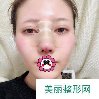 北京耳软骨隆鼻尖打造立体小脸,超乎我的预期!
