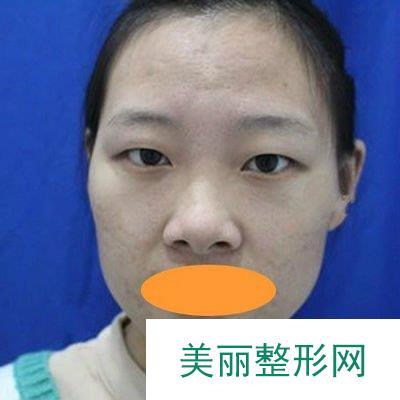 真人案例告诉你生物焊接双眼皮手术的神奇效果,微创自然!