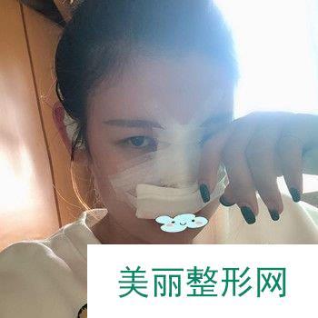 巫文云隆鼻修复效果让我很心动,真不愧是大师级别的专家!