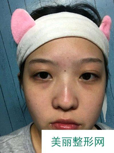 害怕术后留疤选择了内切鼻翼缩小,附上过程和恢复照片