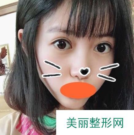 广元第二人民医院做双眼皮的恢复记录,开始有肉条别担心