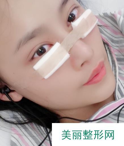 遂宁中心医院眼袋整形半个多月的恢复过程分享