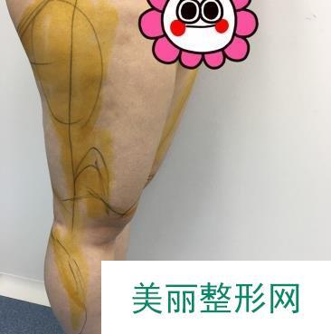 宝妈做了射频溶脂瘦大腿恢复好身材