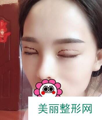 北京开内眼角效果图集展示,给媚眼锦上添花!