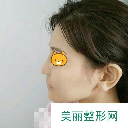 鼻头鼻翼鼻尖整形恢复三个月,朋友都说我更秀气了