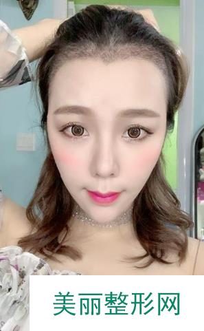 美人尖整形之后还能改善我的脸型,效果很自然!