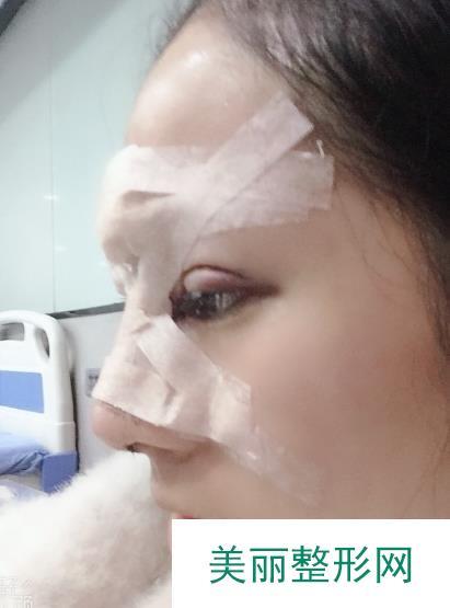 隆鼻加双眼皮体验过程分享给大家,自己的变化真的超级大好好看啊