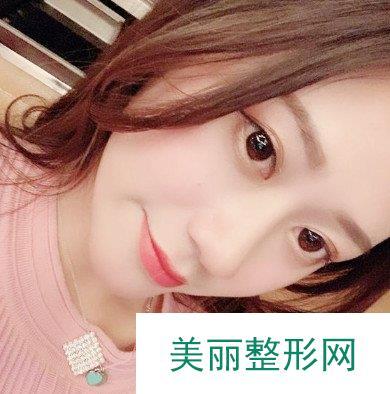 亚韩整形美容医院做的软骨隆鼻分享贴,还要没有出岔子!