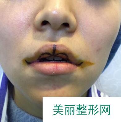 玻尿酸丰唇效果改善很明显,还好没有被打成网红脸!