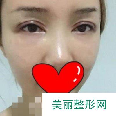 玻尿酸填泪沟这么受欢迎,我终于体验到它神奇的效果了!