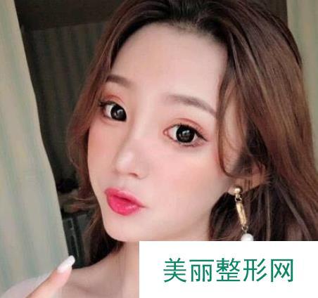 北京韩式隆鼻真人案例图,平凡的脸庞也能打造出精致感!