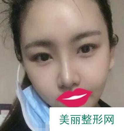 贵州省人民医院隆鼻怎么样?鼻子做完不痛还炒鸡自然