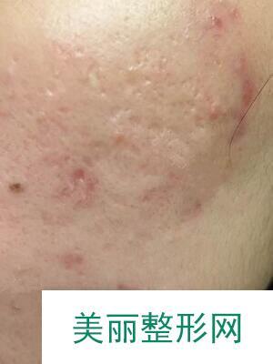 像素激光去痘疤两个月达到无痕效果,脸上乐开花!