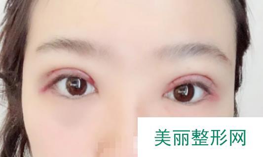 南阳三院双眼皮术后终于有bulingbuling的大眼睛了