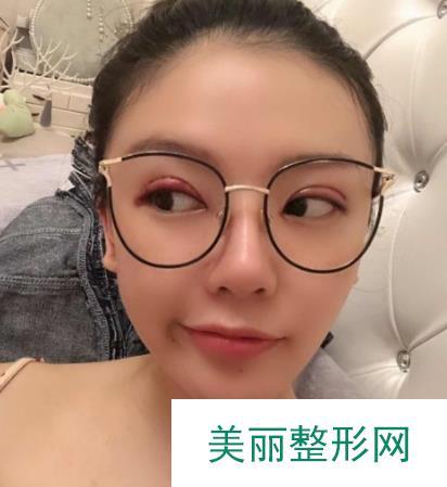 修志夫医生割双眼皮案例,看我化了美美的妆眼睛宛若天生!