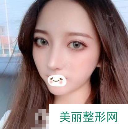 重庆美莱做的隆鼻案例真人图,360度全方位改善!