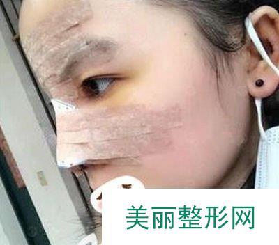 韩式三段隆鼻拯救了我的塌鼻子,轻松拥有俊俏美鼻