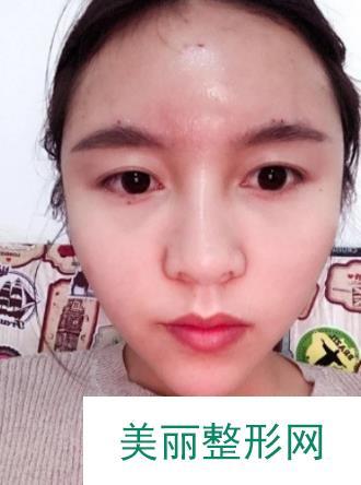 打造北京新面孔来看看面部填充的魔力,时尚脸就是她了!