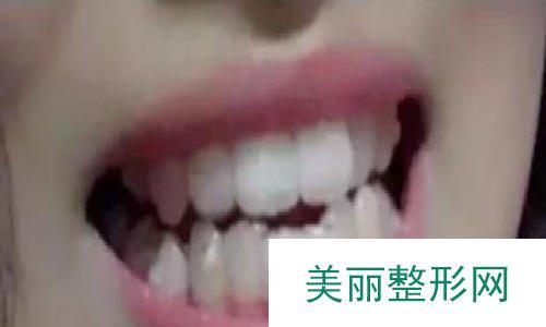 重庆当代医院隐形矫正真人案例,价格和效果都很美腻!