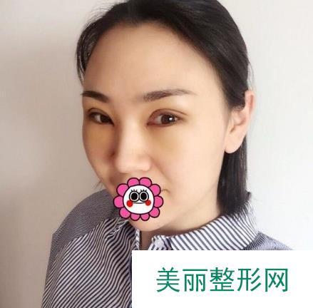 北京压双眼皮改善了肿眼泡颜值更高了从此自信面对人生