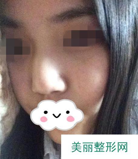 鼻尖抬高两个月终于拥有模特般高级的美鼻