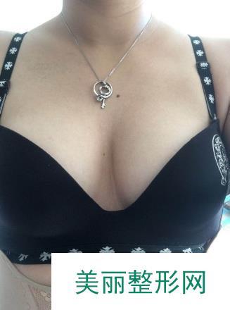 乳房缩小整形术让我肆意的做自己,不是大胸才叫性感