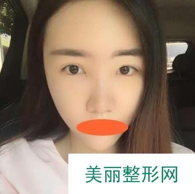 佟玲医生做玻尿酸丰额头两个多月,额头饱满了皱纹也都不见了