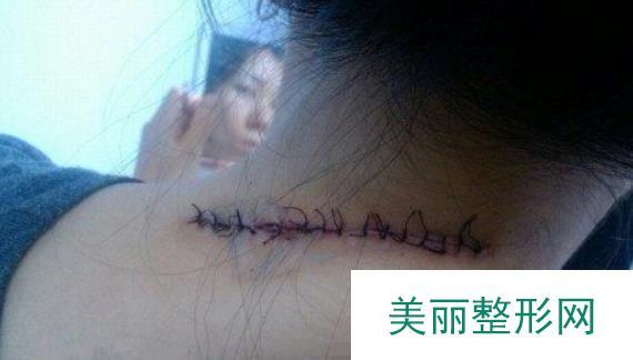 衡阳第1人民医院去疤痕天鹅颈美了瑕疵可以放心秀出来