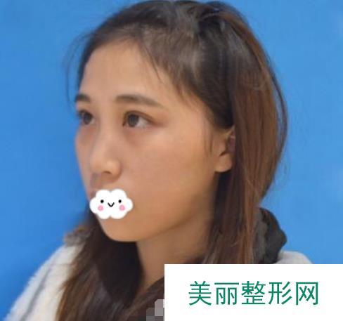 果酸换肤过程脸图片对比还是挺明显的,自己终于变白了