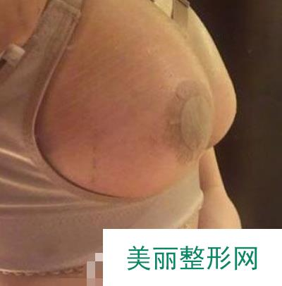 西京医院可以丰胸吗?做完三个月胸部变得高挺了穿衣服超性感